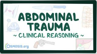 Video poster for Clinical Reasoning: Abdominal trauma