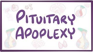 Video poster for Pituitary apoplexy